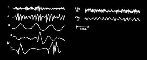 Alerta : La Electricidad Cerebral en Peligro - LA RESONANCIA SCHUMANN . - Página 6 Resonance